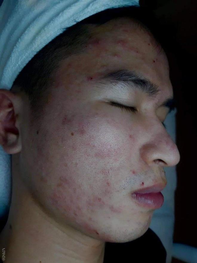 O2 Skin anh 1