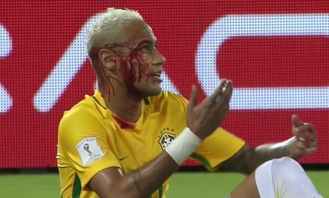 Neymar toa sang va do mau o chien thang 5-0 cua Brazil hinh anh 22