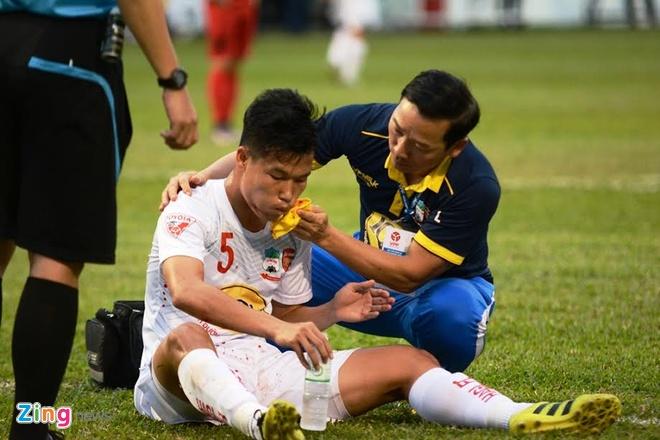 Phung phi co hoi, HAGL thua nguoc CLB Hai Phong hinh anh 6