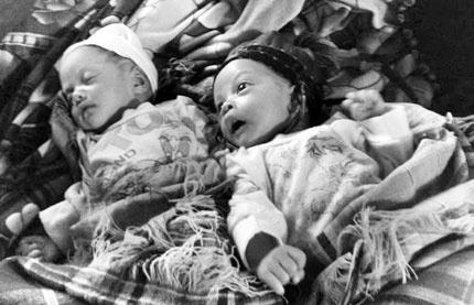 Hai em bé song sinh đặc biệt: Bé sau cách bé trước 29 ngày.