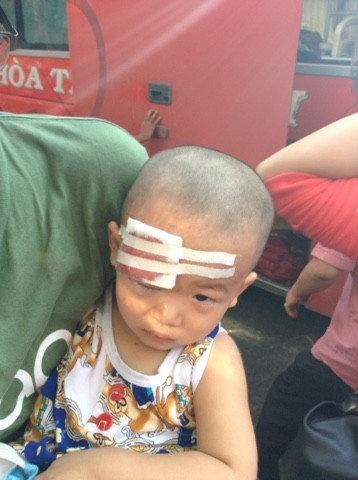 Cháu Nguyễn Phan An Khang bị thương nặng sau vụ ném đá.