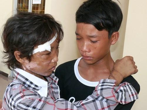 Hao Anh - Hanh trinh tu cau be dang thuong toi trai tam giam hinh anh 1 Hai em song sinh Nguyễn Hào Anh- Nguyễn Hào Anh gặp nhau trong nước mắt sau khi Hào Anh bị hành hạ dã man.