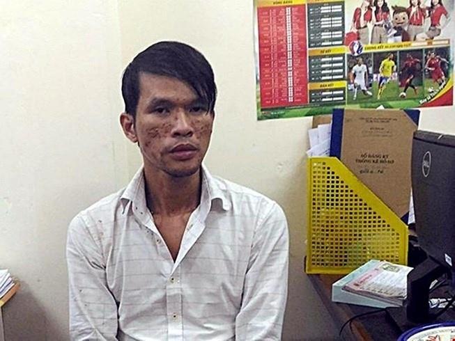 Dung Cam hanh ha tre em o Campuchia bi benh nang hinh anh