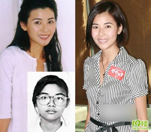 Mông Gia Tuệ là một trong những nữ diễn viên xinh đẹp tài năng nhất Hồng Kông. So với ảnh quá khứ cô ngày càng xinh đẹp, nhiều người nhận xét chiếc mũi của cô nàng đẹp hơn ngày trước rất nhiều.
