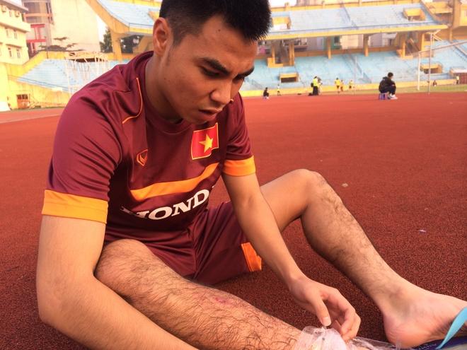 Tien ve U23 VN chan thuong sau cu vao bong cua JFL Selection hinh anh