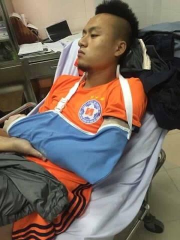 Vo Huy Toan gay tay o tran giao huu truoc them V.League 2017 hinh anh 2