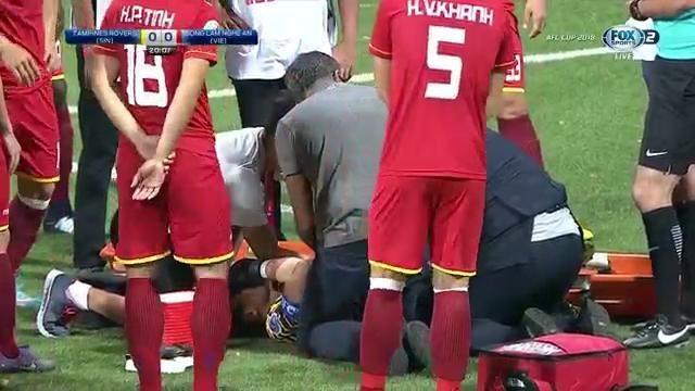 Nguyen Manh bi gay tay, SLNA thang 2-0 o AFC Cup 2018 hinh anh 1