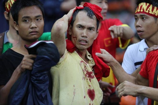 Nhiều CĐV Việt Nam đã bị tấn công ở cuối trận đấu Malaysia - Việt Nam. Ảnh: Tùng Lê.
