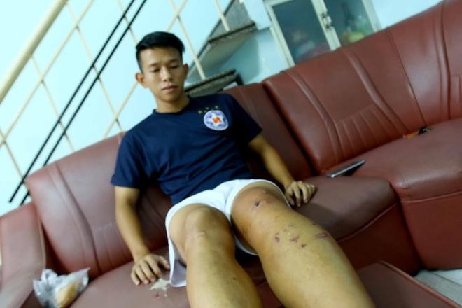 Chan thuong cua Anh Khoa cuc ky phuc tap hinh anh 1 Chấn thương đầu gối của Anh Khoa là cực kỳ nghiêm trọng và phức tạp. Ảnh: Thắng Lê.