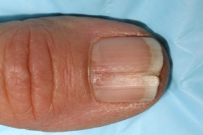 Nhận biết các bệnh nguy hiểm qua bất thường ở móng tay 345130af264565a57880bf93e7ed490e