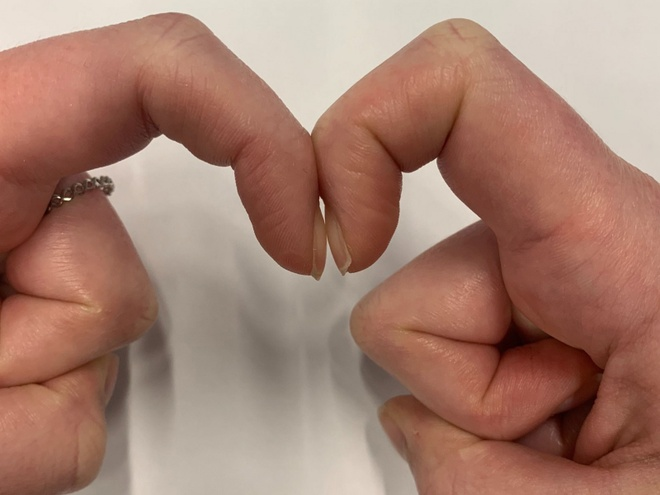Nhận biết các bệnh nguy hiểm qua bất thường ở móng tay Schamroth_window_test