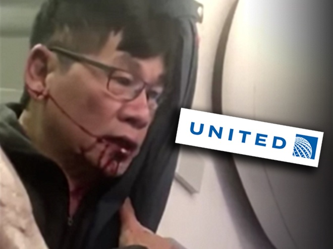 Hashtag tuan qua: David Dao, giot nuoc lam tran ly cho United Airlines hinh anh