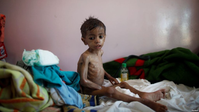 Nan doi o Yemen: Khung hoang nhan dao nghiem trong nhat the gioi hinh anh 1
