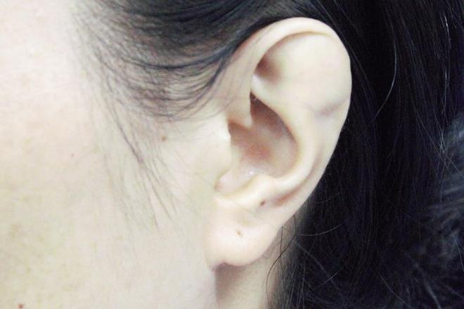 Người phụ nữ giấu chồng về đôi tai dị tật suốt 15 năm - Sức khỏe