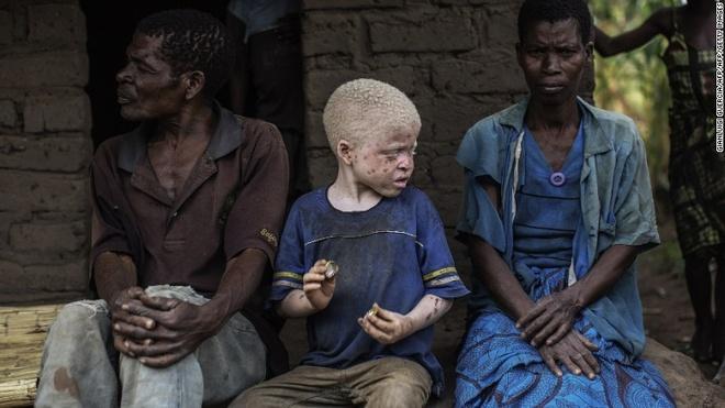Noi so bi truy sat cua nguoi bach tang o Malawi hinh anh