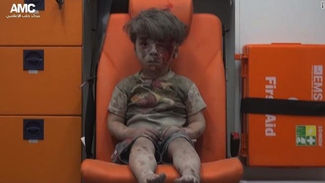 Hinh anh be trai Syria bi thuong gay chan dong du luan hinh anh