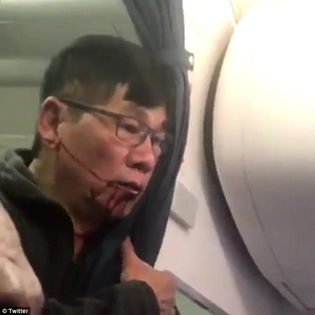 Tong thong Trump da xem video nguoi goc Viet bi keo khoi may bay hinh anh