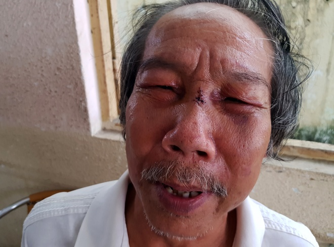 Bao ve chung cu Saigon Metro Park danh nha tho 68 tuoi ngat xiu hinh anh 2
