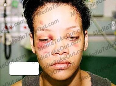 Soc voi nhung anh moi tu vu Rihanna bi hanh hung hinh anh